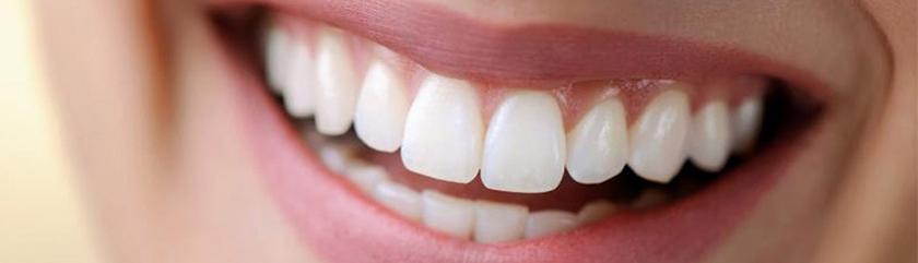 Teeth With Cosmetic Veneers